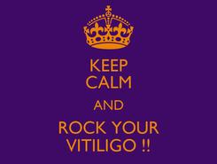 Poster: KEEP CALM AND ROCK YOUR VITILIGO !!