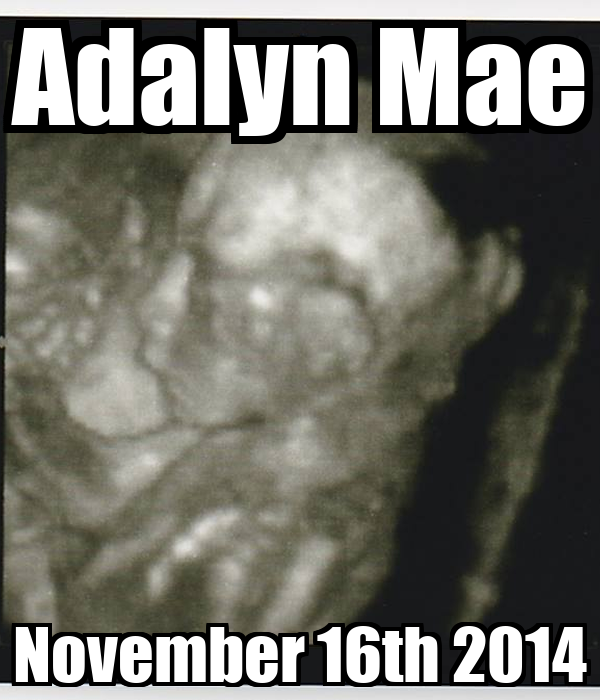 Adalyn Mae November 16th 2014