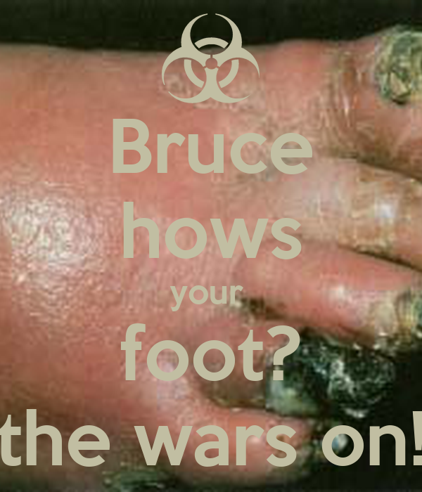 Bruce hows your  foot? the wars on!
