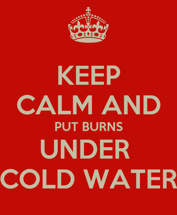 KEEP CALM AND PUT BURNS UNDER  COLD WATER