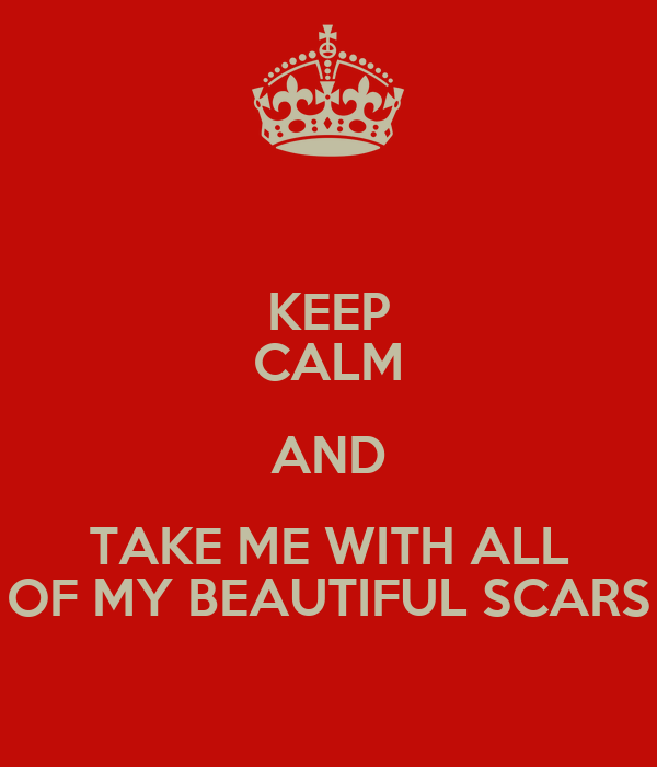 KEEP CALM AND TAKE ME WITH ALL OF MY BEAUTIFUL SCARS