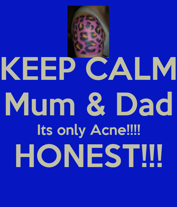KEEP CALM Mum & Dad Its only Acne!!!! HONEST!!!