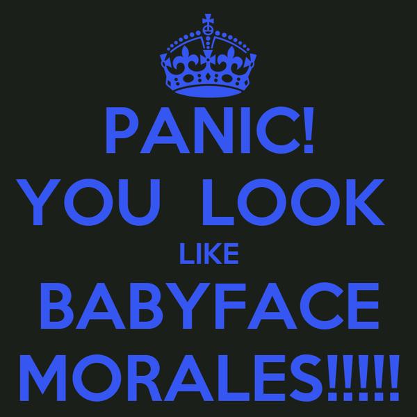 PANIC! YOU  LOOK  LIKE BABYFACE MORALES!!!!!