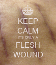 KEEP CALM IT'S ONLY A FLESH WOUND - Personalised Poster large