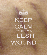 KEEP CALM IT'S ONLY A FLESH WOUND - Personalised Poster A1 size