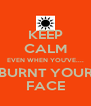 KEEP CALM EVEN WHEN YOU'VE.... BURNT YOUR FACE - Personalised Poster A4 size